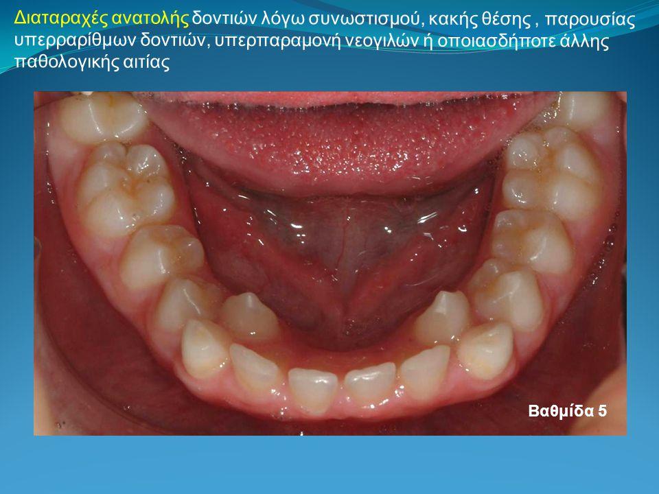 Διαταραχές ανατολής δοντιών λόγω συνωστισμού, κακής θέσης , παρουσίας υπερραρίθμων δοντιών, υπερπαραμονή νεογιλών ή οποιασδήποτε άλλης παθολογικής αιτίας