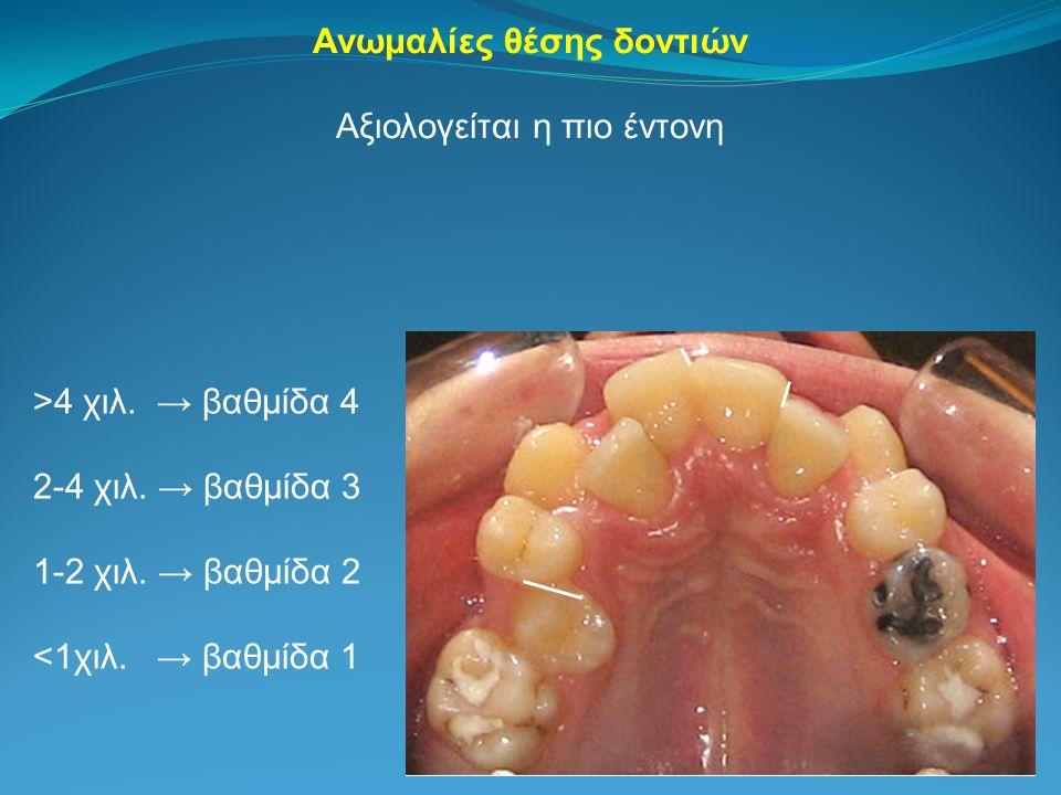 Ανωμαλίες θέσης δοντιών
