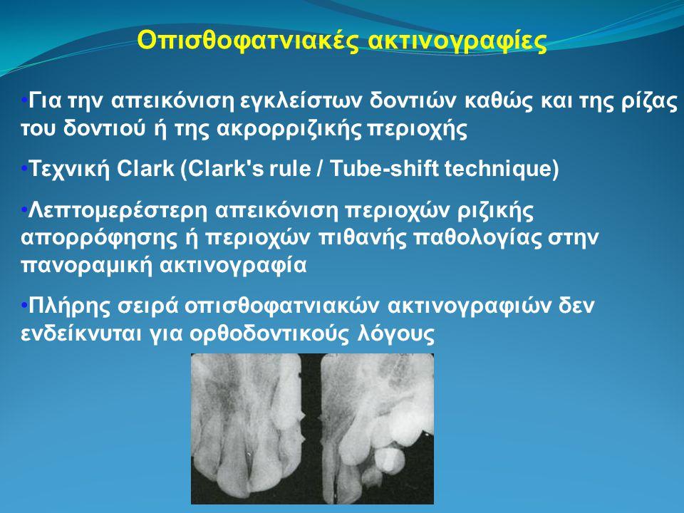 Οπισθοφατνιακές ακτινογραφίες