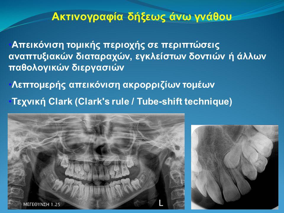 Ακτινογραφία δήξεως άνω γνάθου