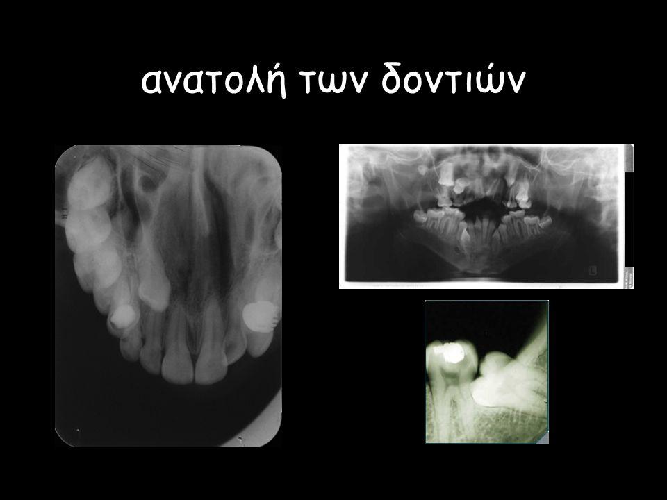 ανατολή των δοντιών