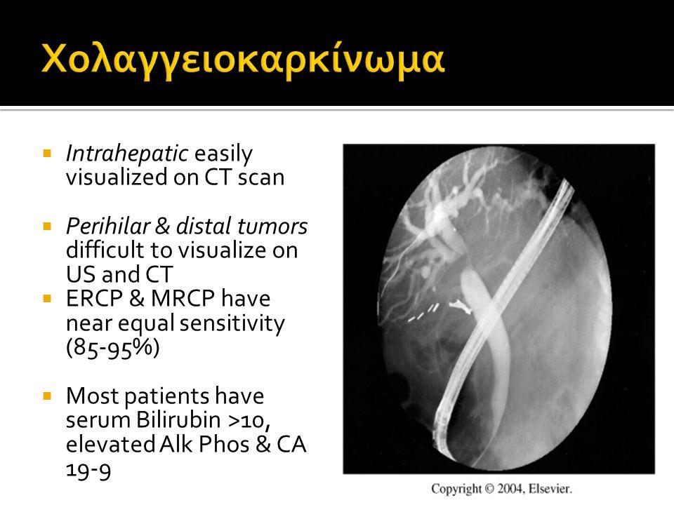 Χολαγγειοκαρκίνωμα Intrahepatic easily visualized on CT scan