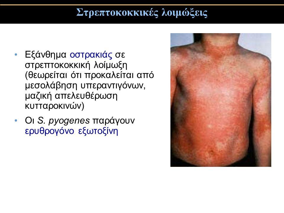 Στρεπτοκοκκικές λοιμώξεις