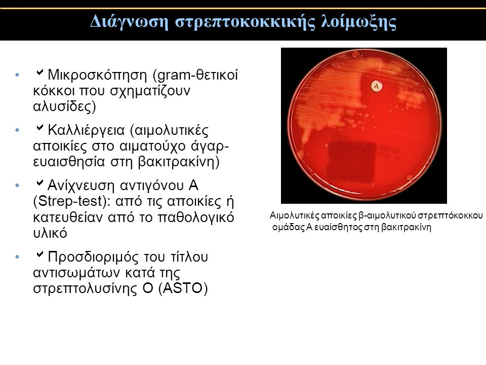 Διάγνωση στρεπτοκοκκικής λοίμωξης