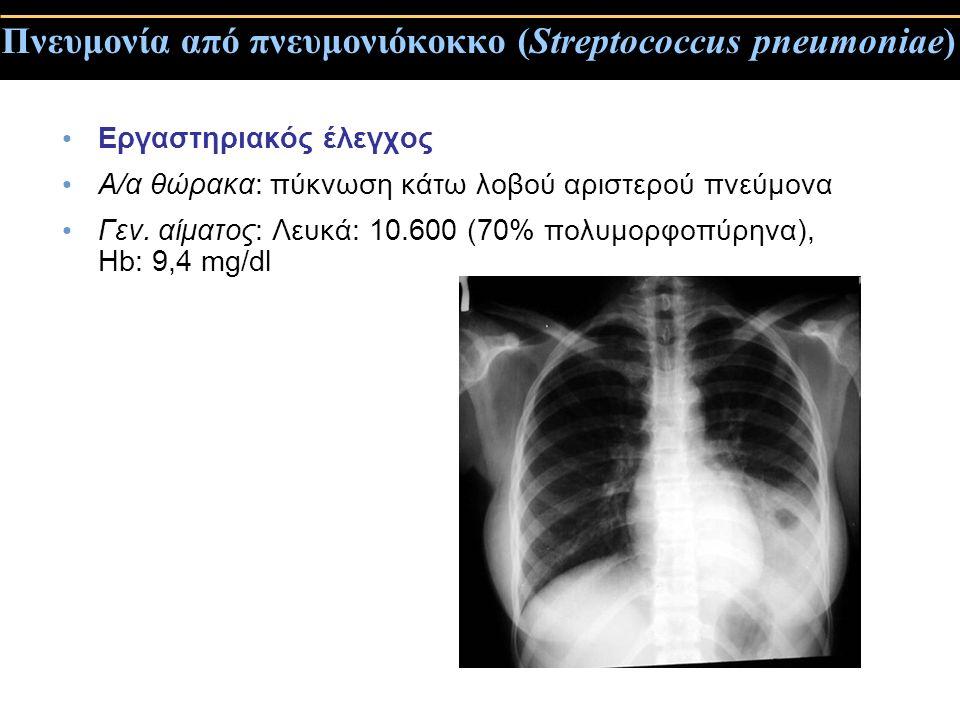 Πνευμονία από πνευμονιόκοκκο (Streptococcus pneumoniae)