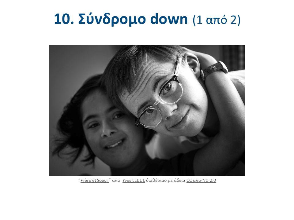 10. Σύνδρομο down (2 από 2) Σύνδρομο Down (DS): Χρωμοσωμική ανωμαλία στο 21ο ζεύγος (Τρισωμία 21) (Patterson, 2009)