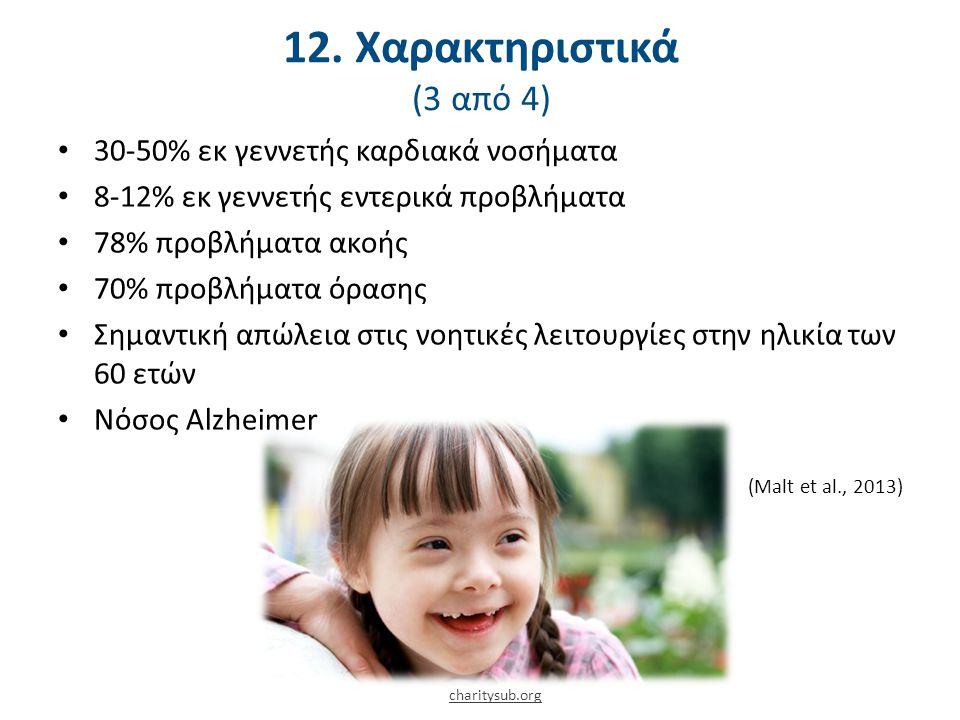 12. Χαρακτηριστικά: Κινητικά (4 από 4)