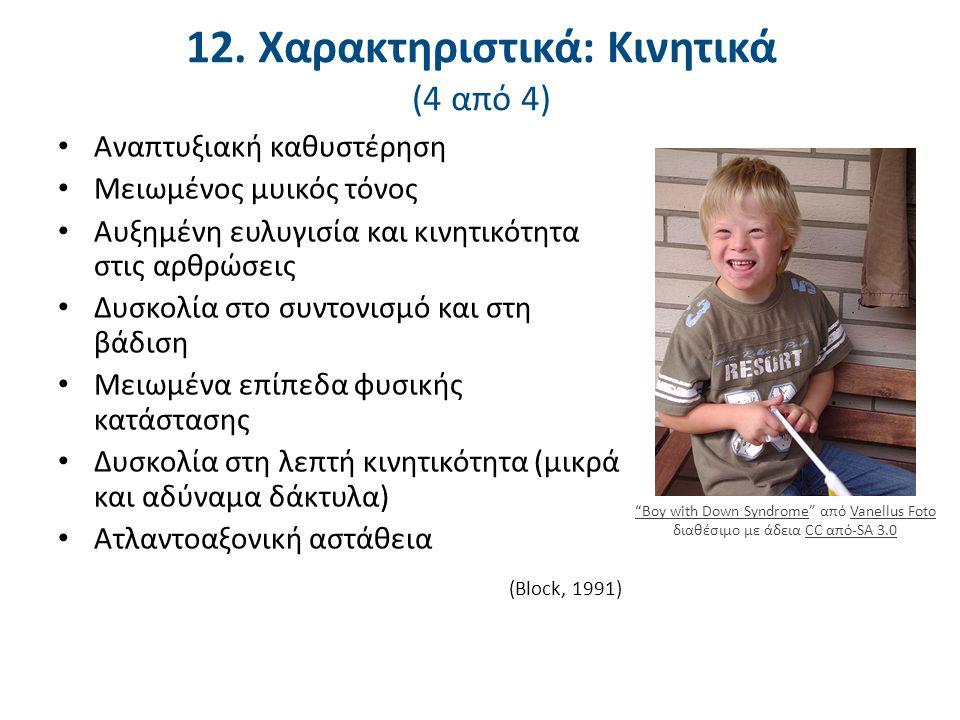 13. Ατλαντοαξονική Αστάθεια (ATLANTOAXIAL INSTABILITY)
