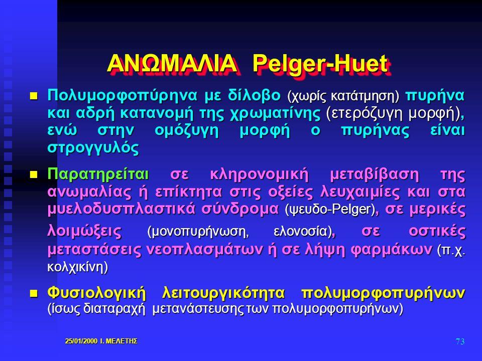 ΑΝΩΜΑΛΙΑ Pelger-Huet