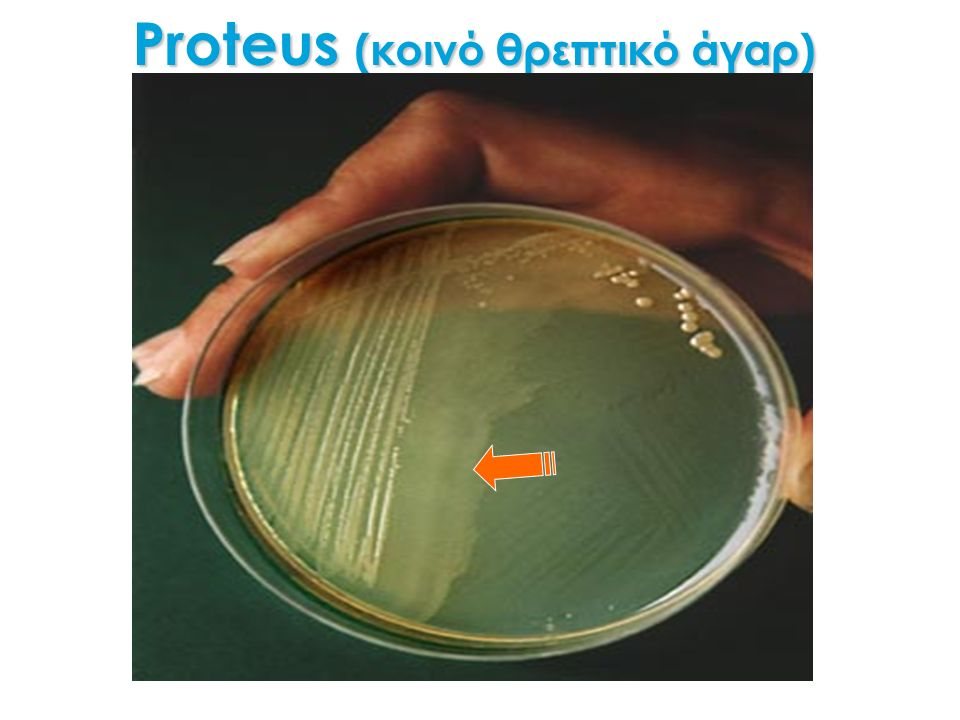 Proteus (κοινό θρεπτικό άγαρ)