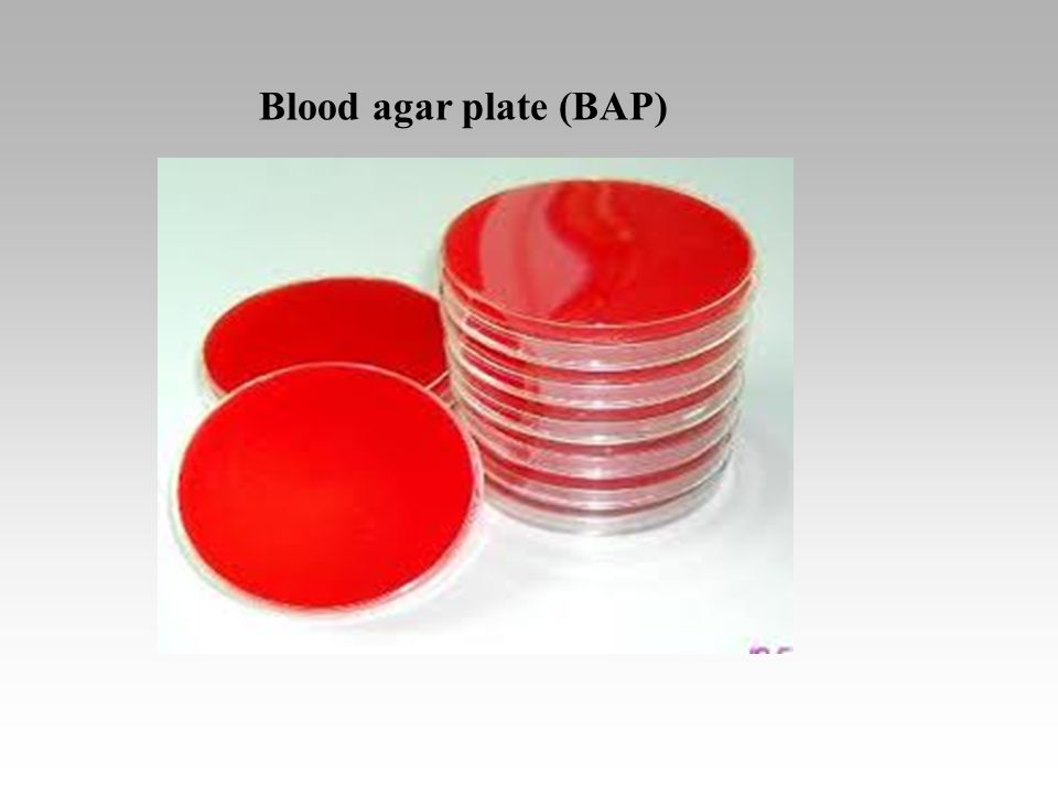 Blood agar plate (BAP)