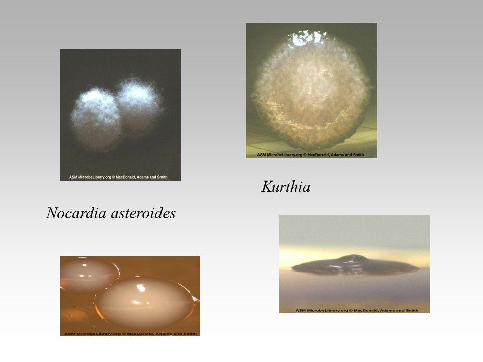 Kurthia Nocardia asteroides