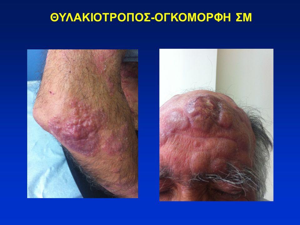 ΘΥΛΑΚΙΟΤΡΟΠΟΣ-ΟΓΚΟΜΟΡΦΗ ΣΜ