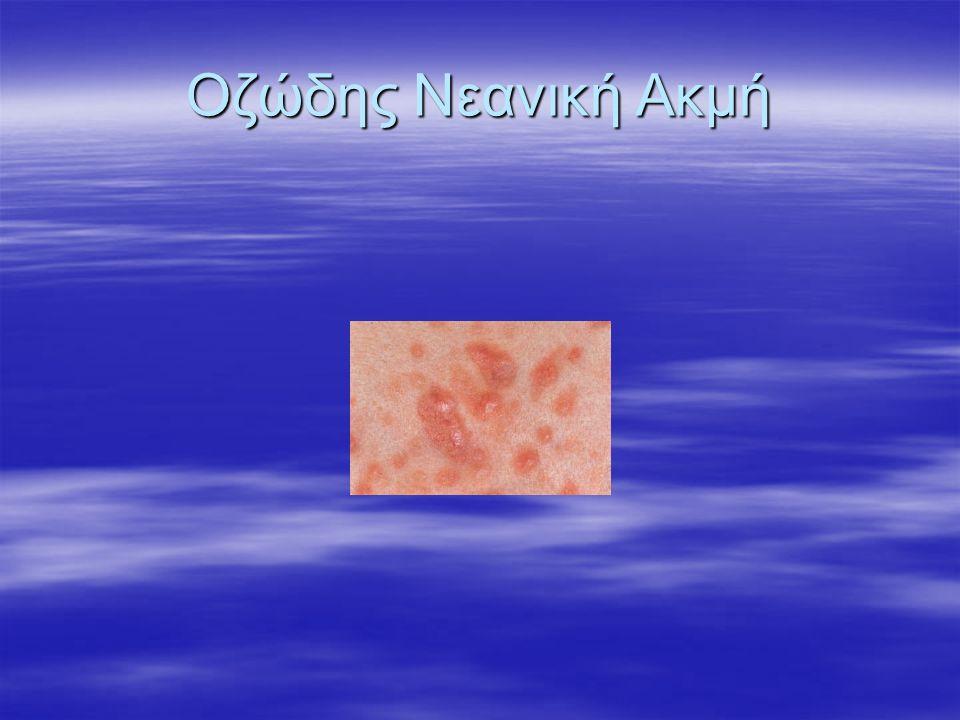 Οζώδης Νεανική Ακμή