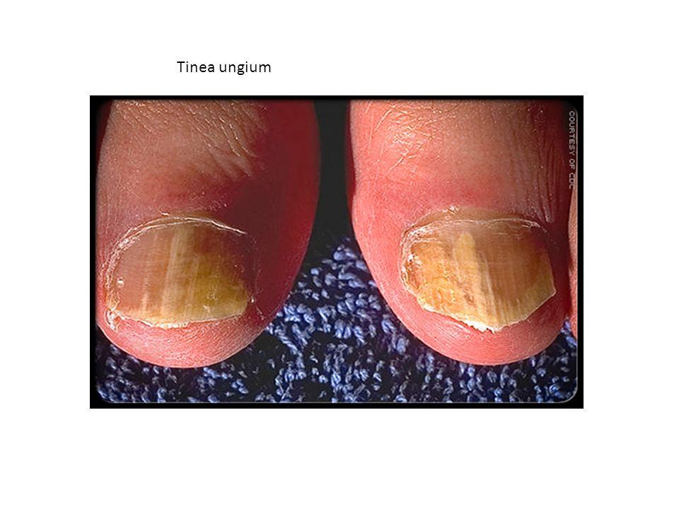 Tinea ungium