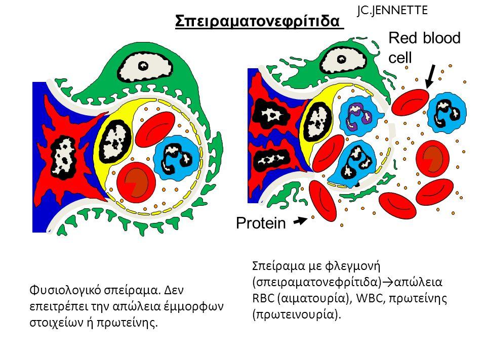 Σπειραματονεφρίτιδα Red blood cell Protein