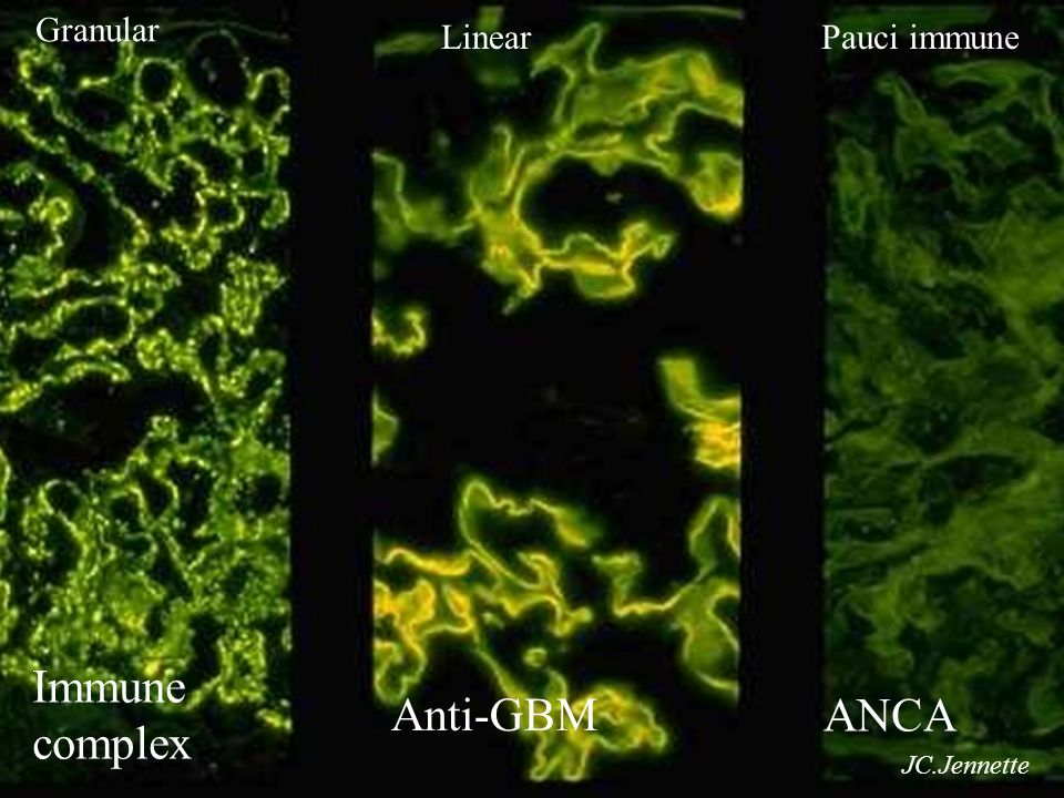 Granular Linear Pauci immune Ιmmune complex Anti-GBM ANCA JC.Jennette