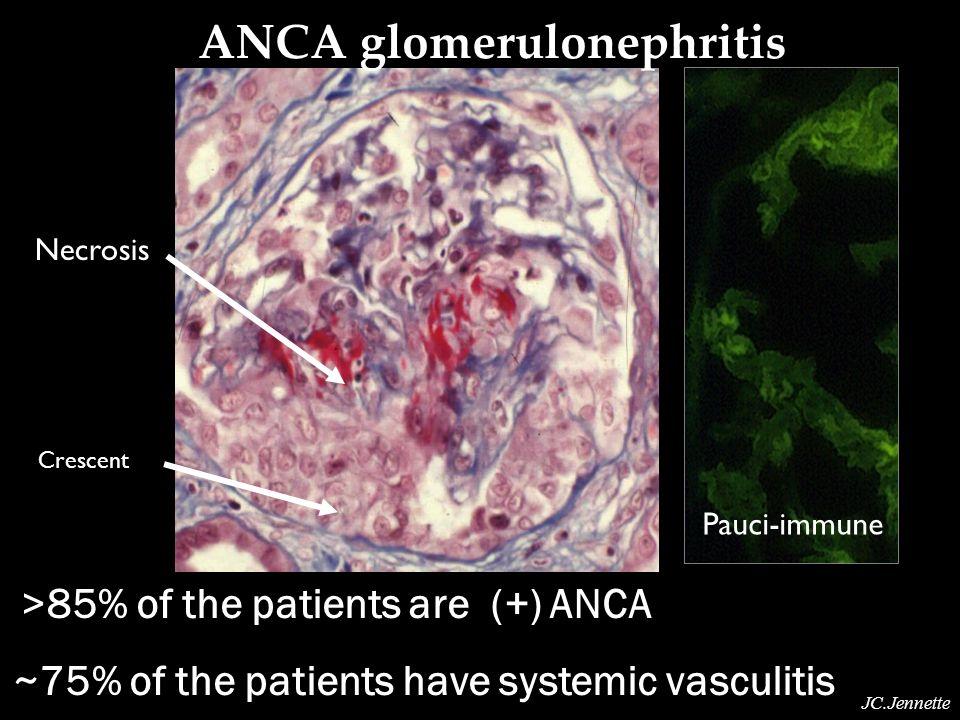 ANCA glomerulonephritis