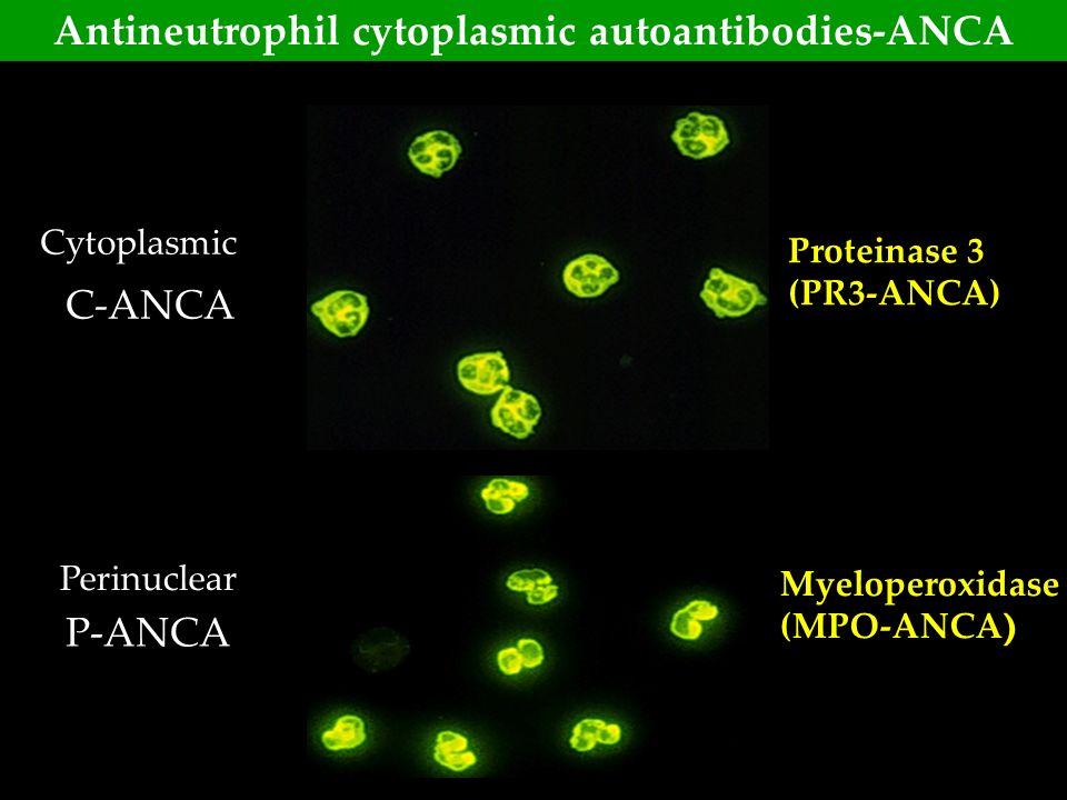 Antineutrophil cytoplasmic autoantibodies-ANCA