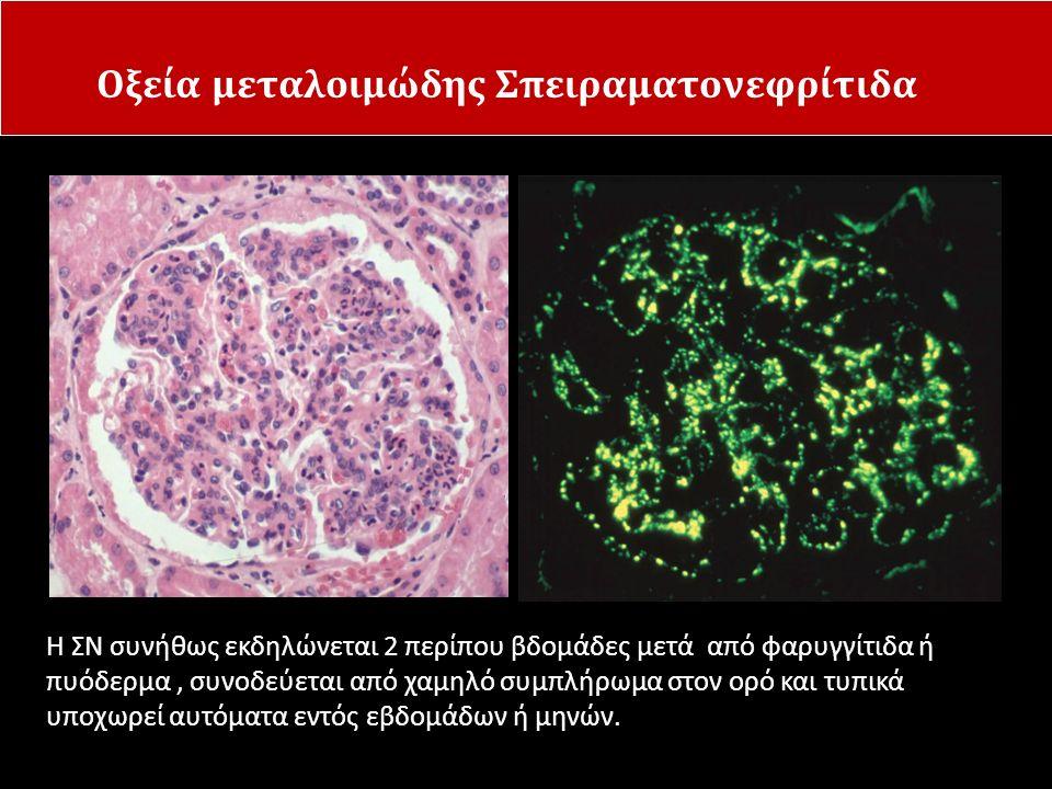 Οξεία μεταλοιμώδης Σπειραματονεφρίτιδα
