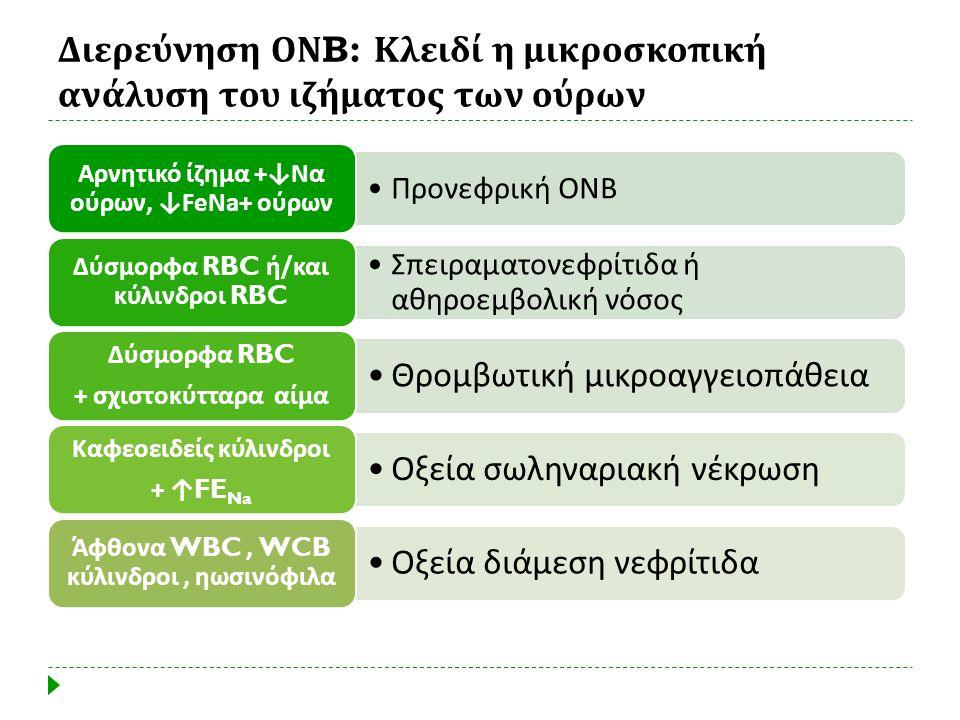 Διερεύνηση ΟΝB: Κλειδί η μικροσκοπική ανάλυση του ιζήματος των ούρων