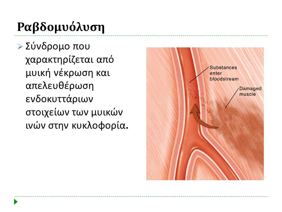 Ραβδομυόλυση Σύνδρομο που χαρακτηρίζεται από μυική νέκρωση και απελευθέρωση ενδοκυττάριων στοιχείων των μυικών ινών στην κυκλοφορία.