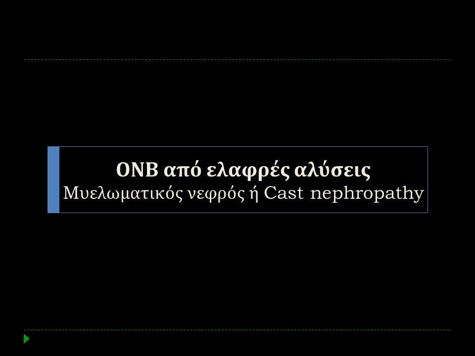 ΟΝΒ από ελαφρές αλύσεις Mυελωματικός νεφρός ή Cast nephropathy