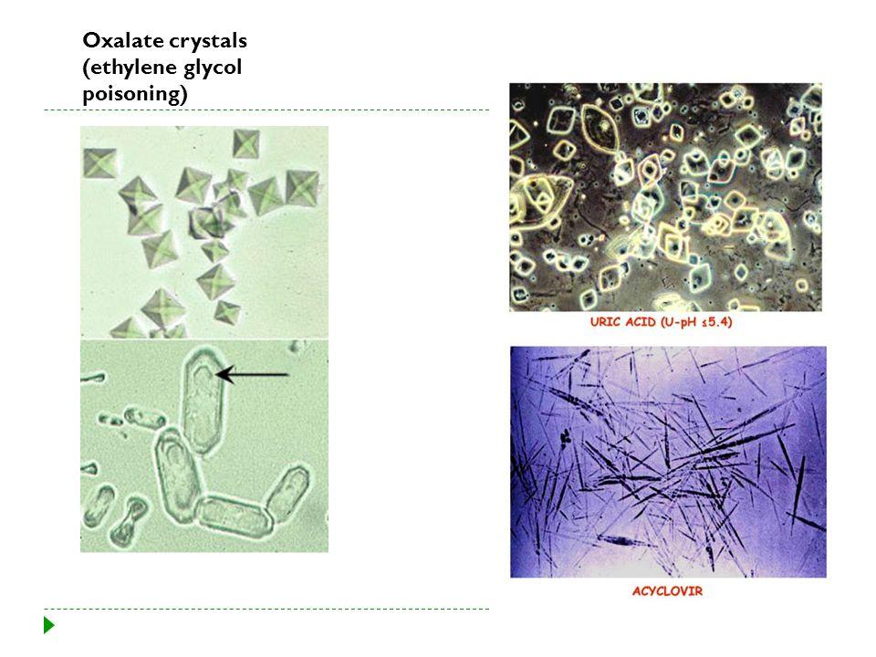 Oxalate crystals (ethylene glycol poisoning)