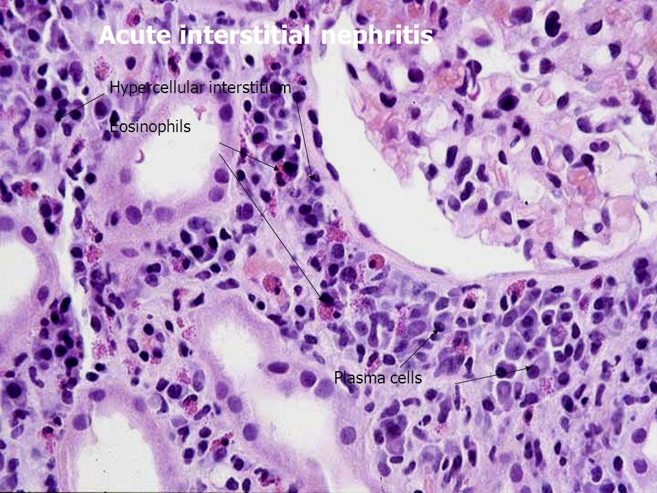 Acute interstitial nephritis