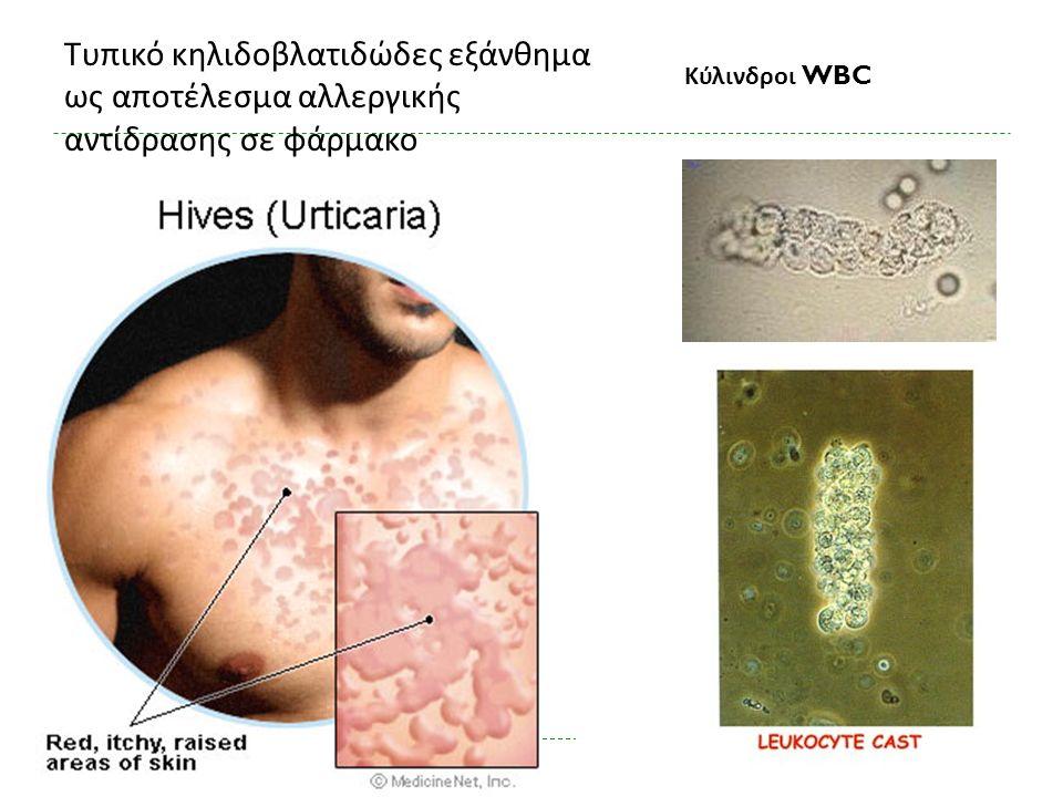 Τυπικό κηλιδοβλατιδώδες εξάνθημα ως αποτέλεσμα αλλεργικής αντίδρασης σε φάρμακο