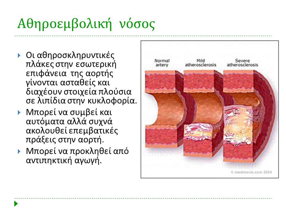 Αθηροεμβολική νόσος