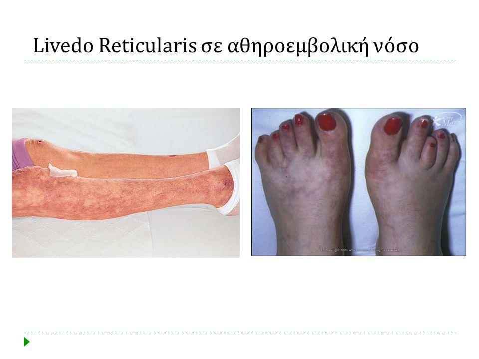 Livedo Reticularis σε αθηροεμβολική νόσο