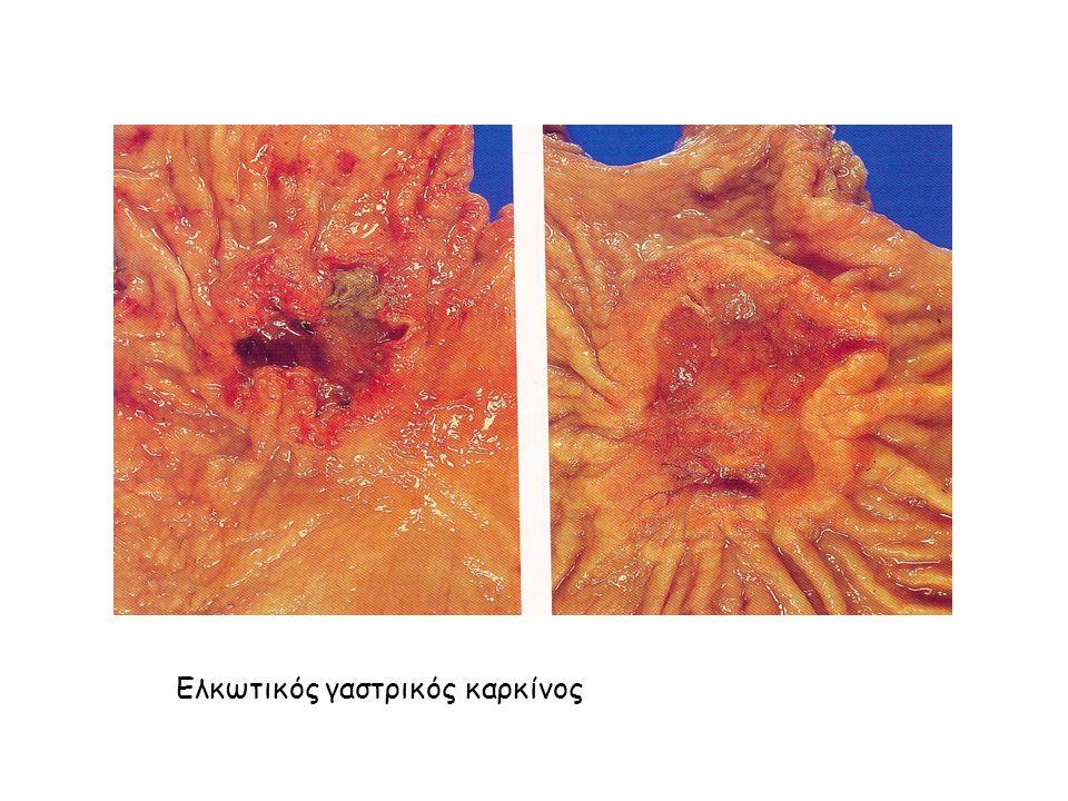 Ελκωτικός γαστρικός καρκίνος