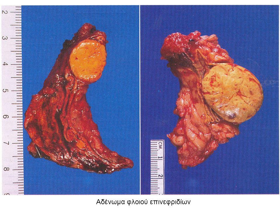 Αδένωμα φλοιού επινεφριδίων