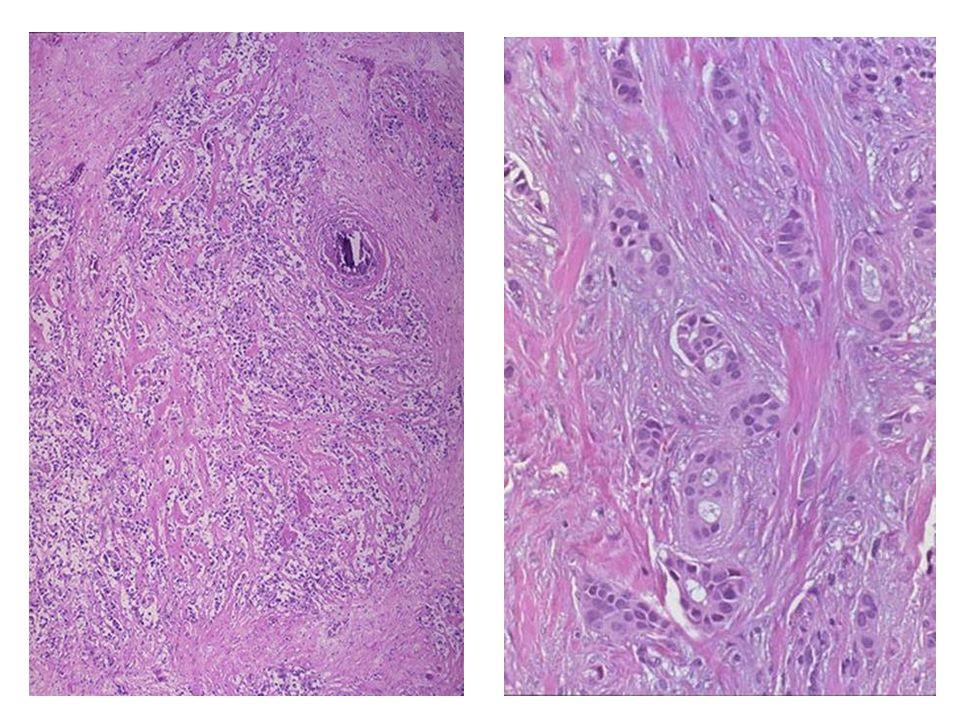 Καρκίνος Μαστού δεσμοπλασία
