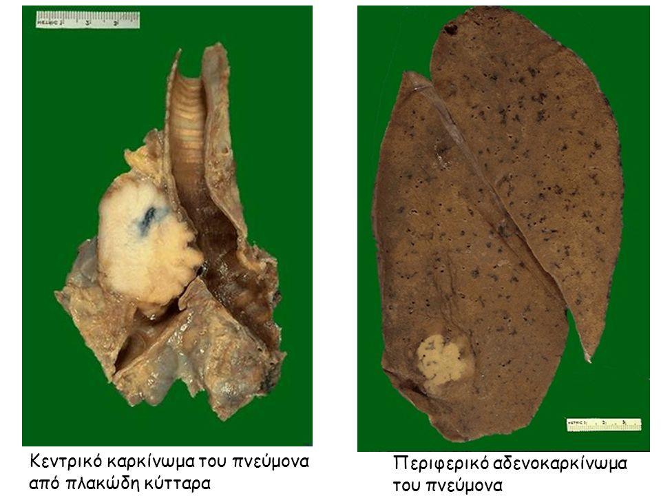 Κεντρικό καρκίνωμα του πνεύμονα από πλακώδη κύτταρα