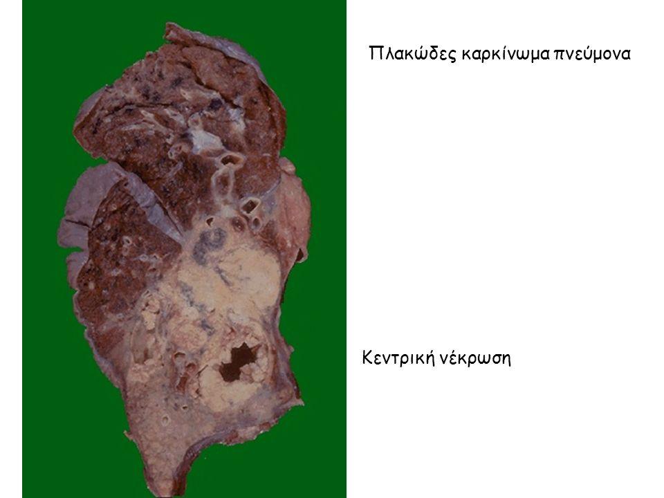 Πλακώδες καρκίνωμα πνεύμονα