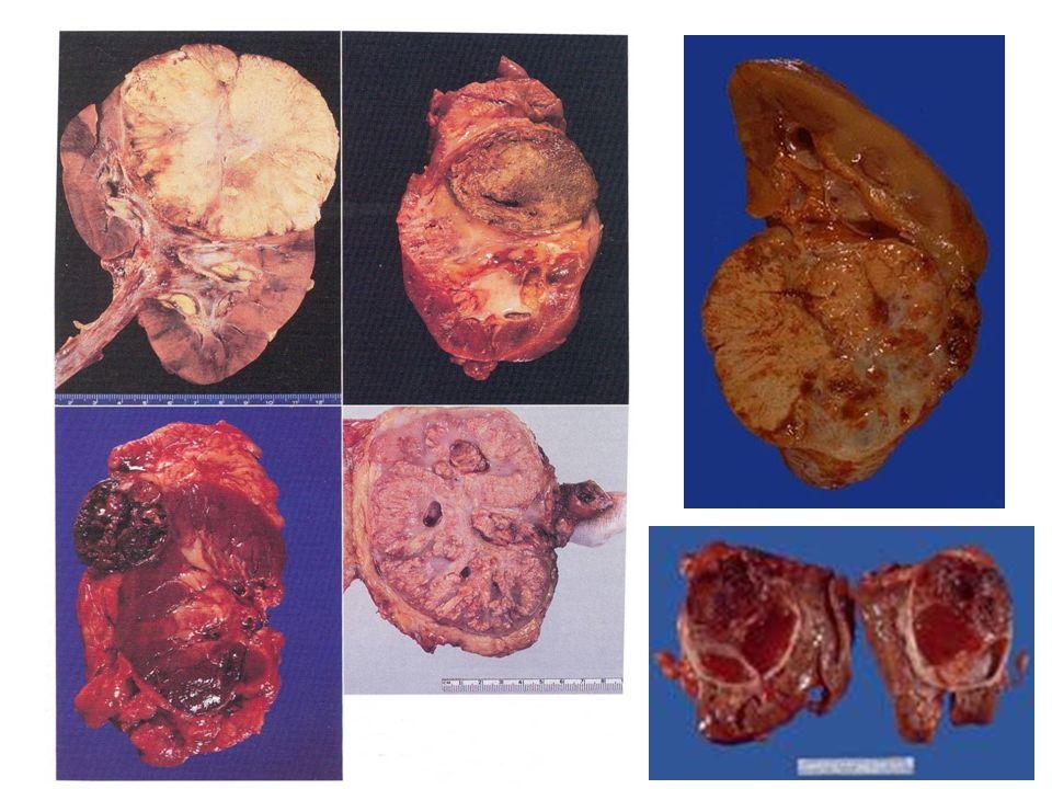 ΑδενοCa νεφρού