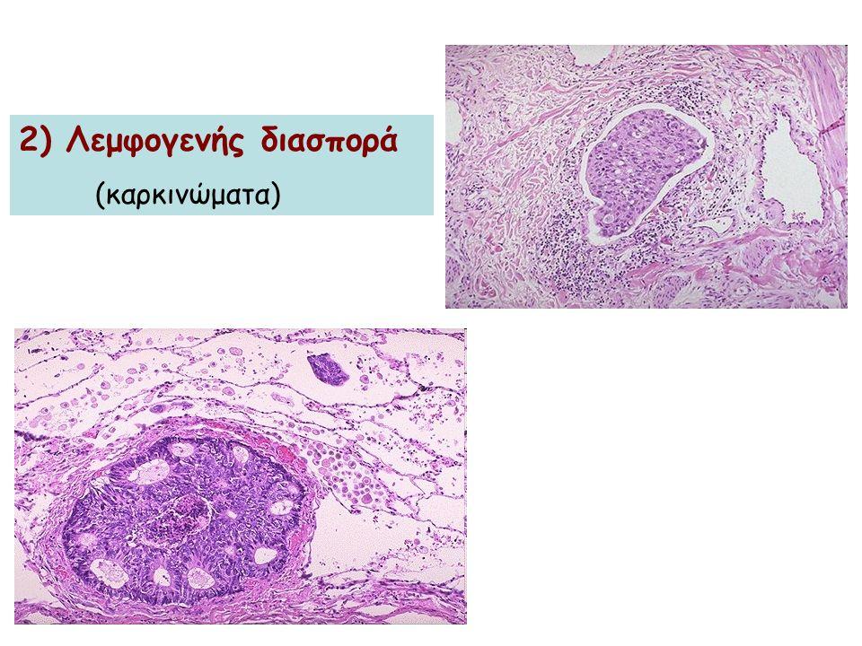 2) Λεμφογενής διασπορά (καρκινώματα)