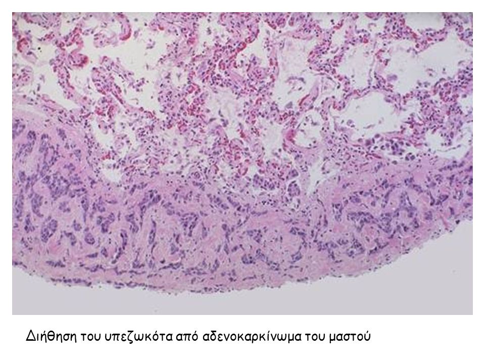 Διήθηση του υπεζωκότα από αδενοκαρκίνωμα του μαστού