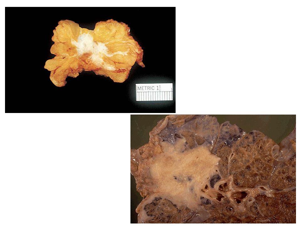 Invasive Ductal Carcinoma