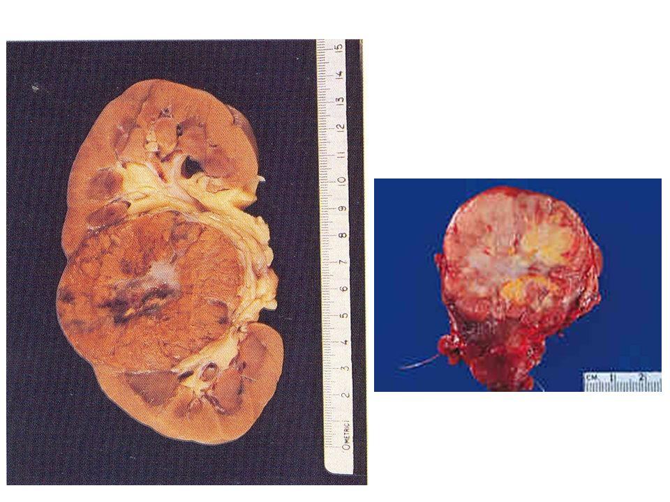 Όγκος νεφρού – ογκοκύττωμα