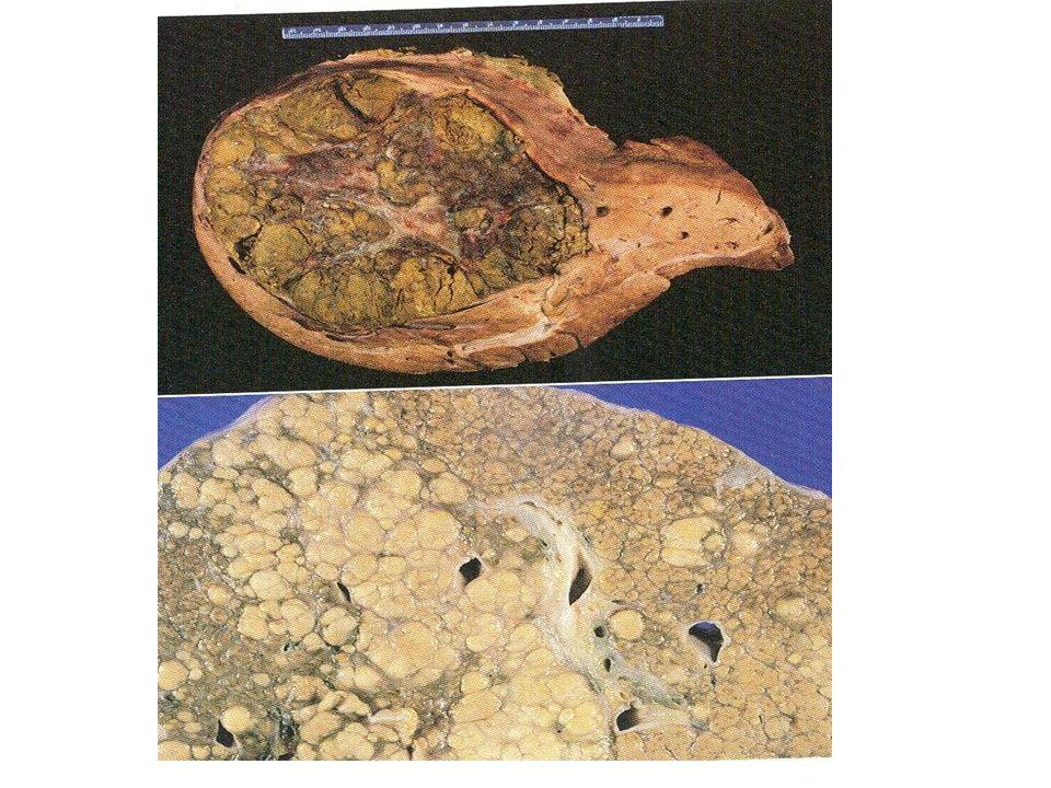 Ηπατοκυτταρικό σε έδαφος κίρρωσης