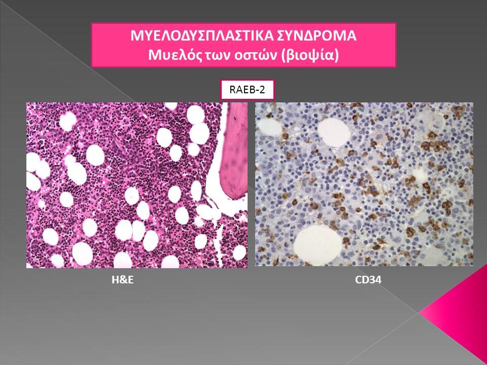 ΜΥΕΛΟΔΥΣΠΛΑΣΤΙΚΑ ΣΥΝΔΡΟΜΑ Μυελός των οστών (βιοψία)