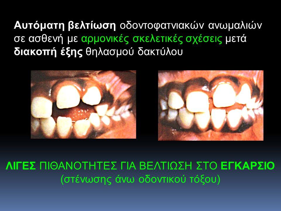 Αυτόματη βελτίωση οδοντοφατνιακών ανωμαλιών