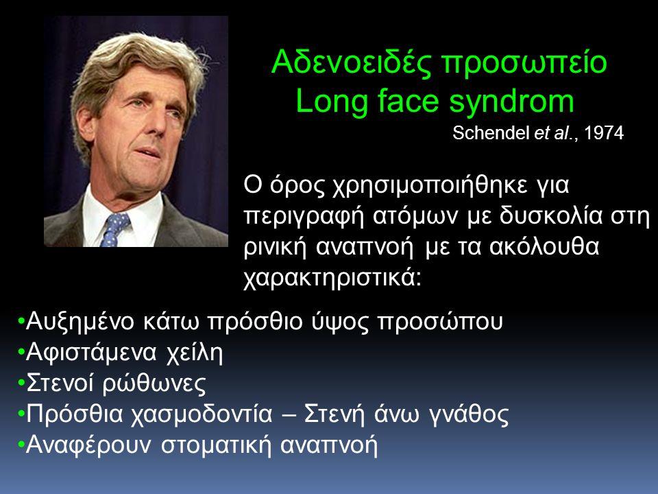 Αδενοειδές προσωπείο Long face syndrom Ο όρος χρησιμοποιήθηκε για