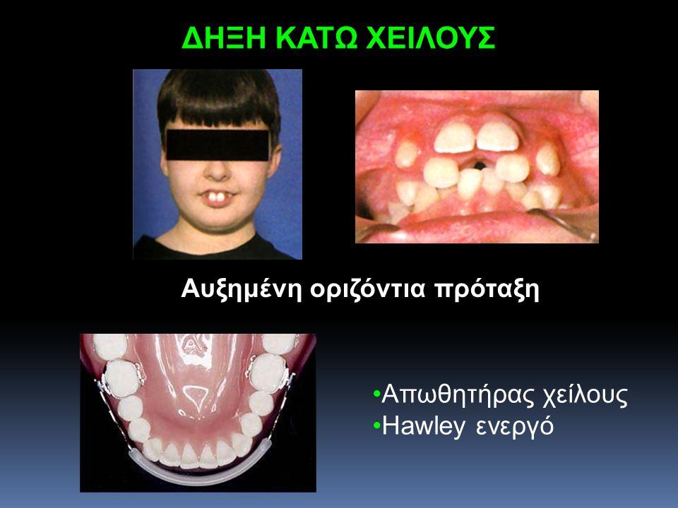 ΔΗΞΗ ΚΑΤΩ ΧΕΙΛΟΥΣ Αυξημένη οριζόντια πρόταξη Απωθητήρας χείλους