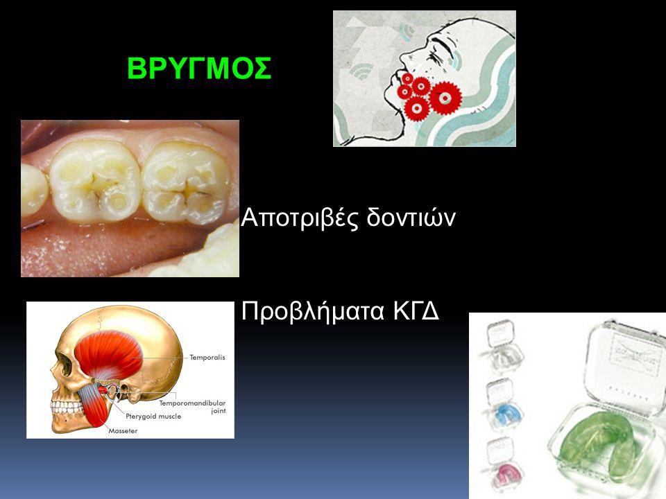 ΒΡΥΓΜΟΣ Αποτριβές δοντιών Προβλήματα ΚΓΔ