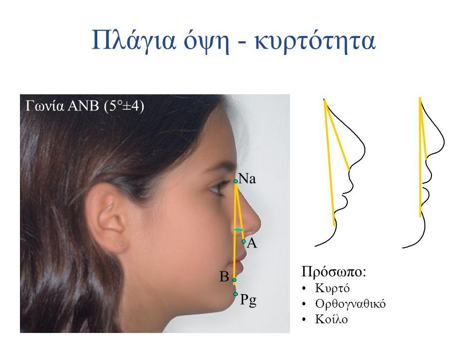 Πλάγια όψη - κυρτότητα Γωνία ANB (5°±4) Na A Πρόσωπο: B Pg Κυρτό