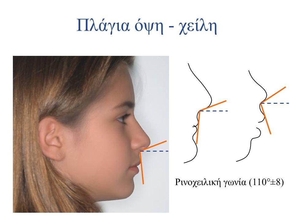 Πλάγια όψη - χείλη Ρινοχειλική γωνία (110°±8)